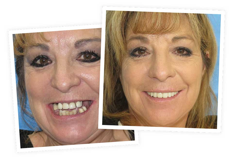 All-on-4® before and after smile at Nevada Facial and Oral Surgery