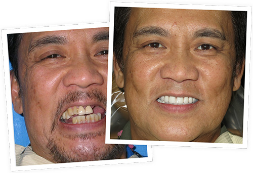 All-on-4 before after smile of a patient at Nevada Facial and Oral Surgery