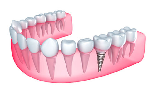 What Are the Best Dental Implants to Get?