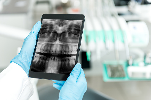 Dental x-ray on tablet at Nevada Facial and Oral Surgery