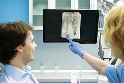 How X-rays Can Help Detect Early Forms of Oral Cancer